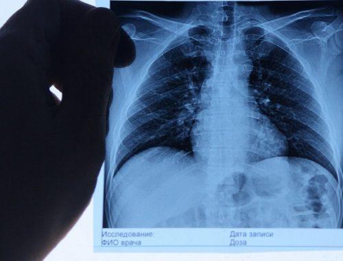 «Рентгенологический субботник» состоится в Биробиджане