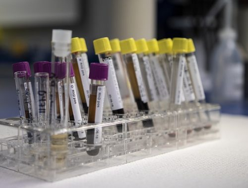 ВИЧ-инфекция: число зараженных в ЕАО продолжает расти