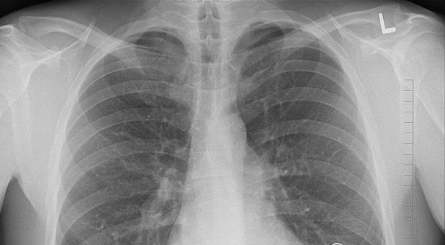 Ситуация с туберкулезом в ЕАО остается сложной